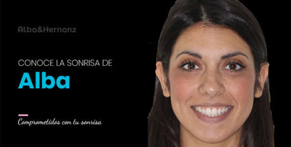 Alba, 30 años, Brackets de zafiro