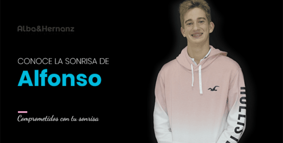 Alfonso, 16 años, Aparato funcional de avance mandibular Brackets de autoligado damon
