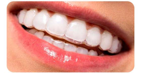 Tipos de tratamientos de Ortodoncia con Invisalign