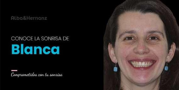 Blanca, 34 años, Brackets de autoligado damon