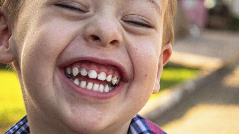 Diastema o dientes separados