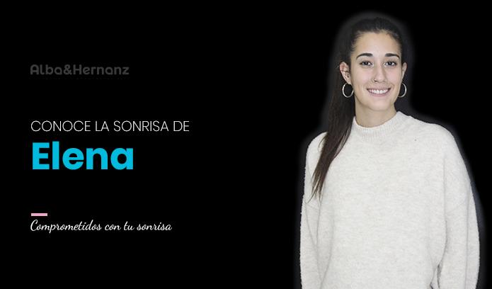 Elena, 19 años, Invisalign