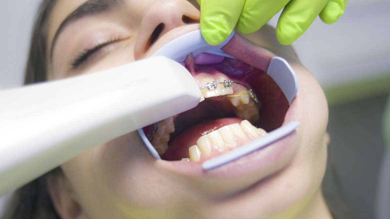La ortodoncia y el verano