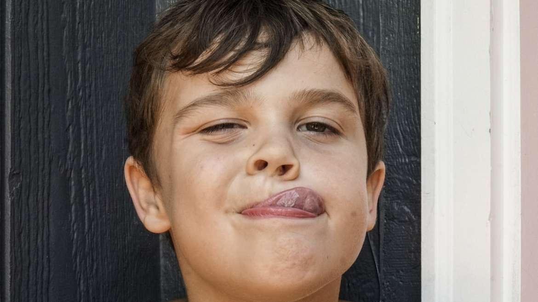 Frenillo lingual corto en niños. ¿Cómo actuar?